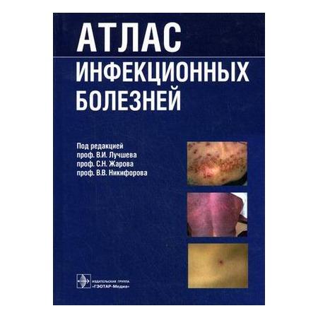 Купить Атлас инфекционных болезней