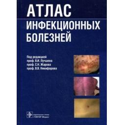 фото Атлас инфекционных болезней