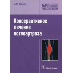 фото Консервативное лечение остеоартроза
