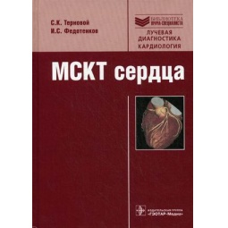 фото Мультиспиральная компьютерная томография сердца