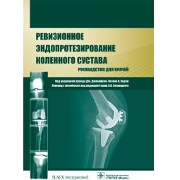 фото Ревизионное эндопротезирование коленного сустава