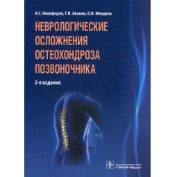 фото Неврологические осложнения остеохондроза позвоночника