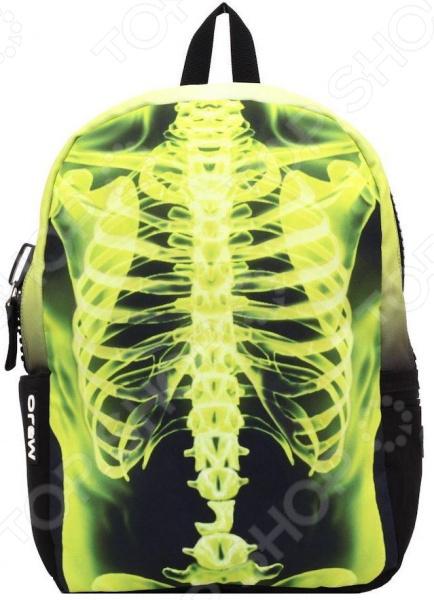 Рюкзак городской Mojo Pax Yellow X-Ray Ribs