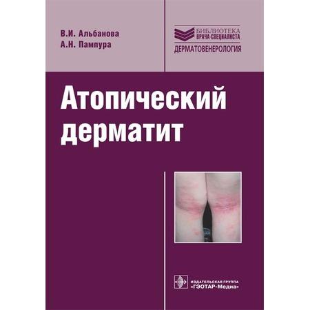 Купить Атопический дерматит