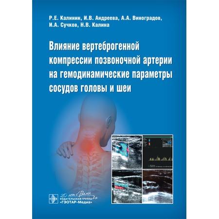 Купить Влияние вертеброгенной компрессии позвоночной артерии на гемодинамические параметры сосудов головы и шеи